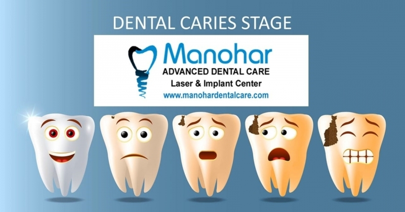 best irregular teeth correction doctor in vizag A.P Manohar dental
