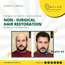 Hair replacement services Hyderabad